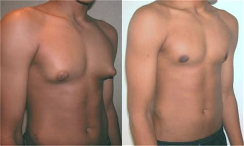 male nipple enlargement picture 1