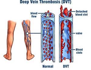 factor v leiden joint pain picture 3