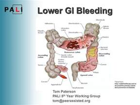 Lower gastrointestinal hemorrhage picture 1