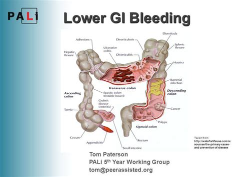 symptons of gastrointestinal tract problems picture 7