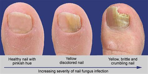toenail fungus laser treatment in southern california picture 4