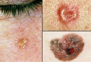 non cancer skin growths picture 5