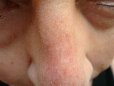 abnormal red blotches on skin picture 2