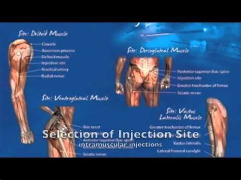 ranbaxy hgh steroid injection how to work picture 10