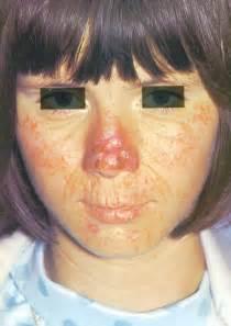 hiv skin lesions picture 7