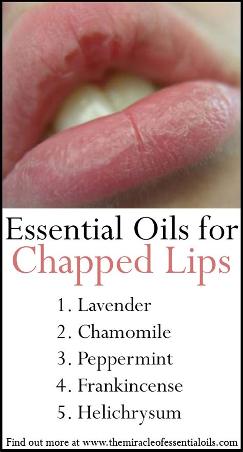 for chapped lips picture 9