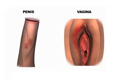 ciri penis herpes picture 9