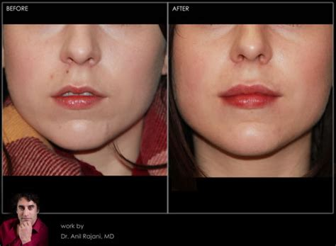 lip injections oregon collagen picture 3