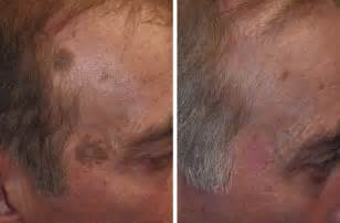removing liver spots from the face picture 14
