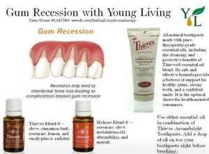 essential oils for h and gums picture 2