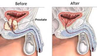 Prognosis recurrent prostate cancer after radical prostatectomy picture 6