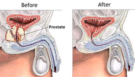 cure for prostatitis picture 5