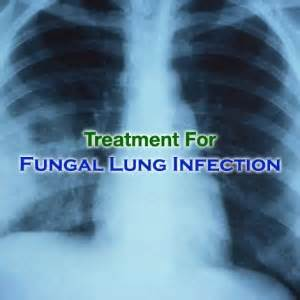 yeast infection lung picture 9
