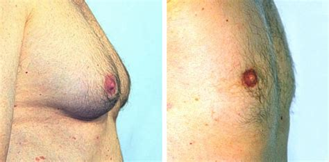 male breast enlargement picture 15