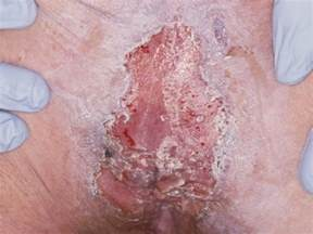 picture of herpes of the thoat picture 2