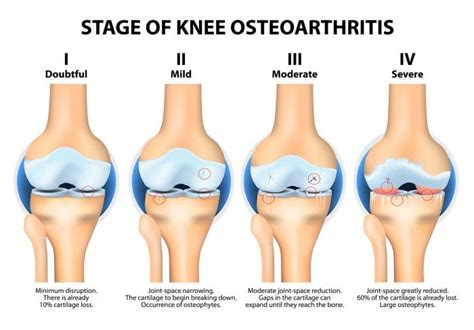 overweight effects on knee joints picture 10