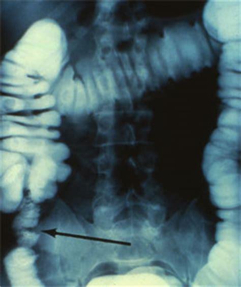 dropped colon picture 18