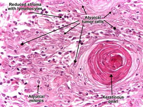 advanced squamous cell skin cancer picture 5