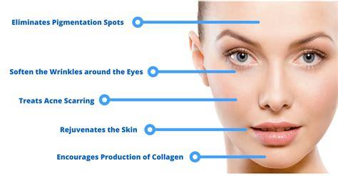 acne scar removal picture 3