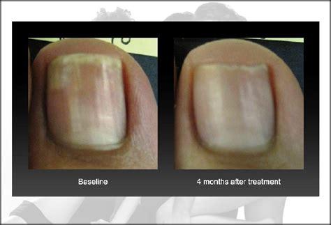 cutera genesis plus laser nail fungus reviews picture 1
