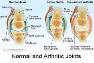 joint pain joint swelling temperature fatigue weakness sore picture 6