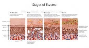 does eczema darken skin picture 2