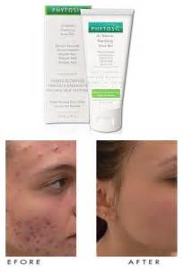 salicylic acid acne l picture 3