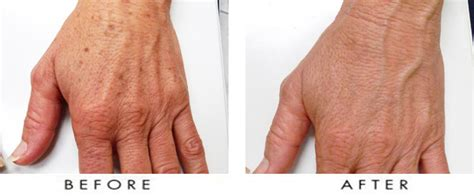 aging spots cure picture 14