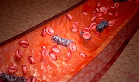 contagious bacterial blood infections picture 21