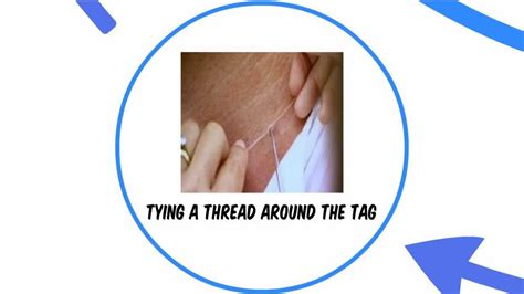 at home skin tag removal picture 14