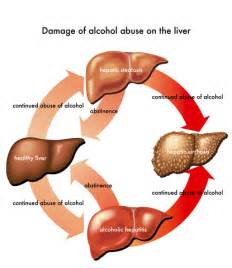 what side is the liver picture 13