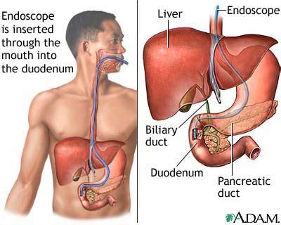 carcinoma pancreas colon liver picture 7