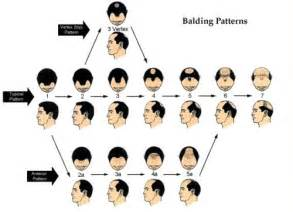 hair loss scale picture 7