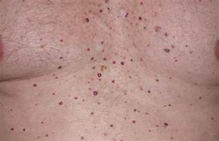 skin angiomas picture 5