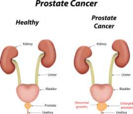 jan 2014 how to tell when prostate cancer picture 5