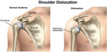 joint dislocation picture 9