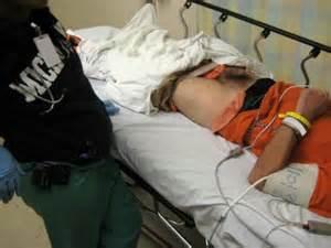 female hernia exam picture 2