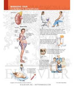 diet for with cushing's syndrome picture 1