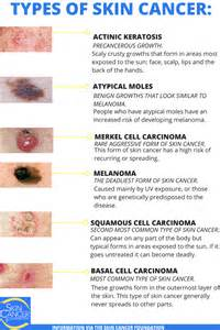 pictures of skin cancer types picture 1
