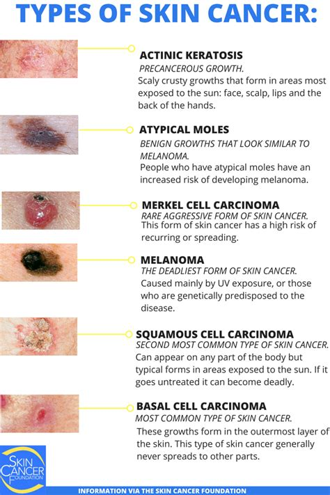skins of skin cancer picture 3