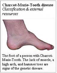 hgh charcot marie tooth picture 7