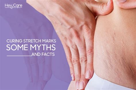facts about stretch marks picture 10