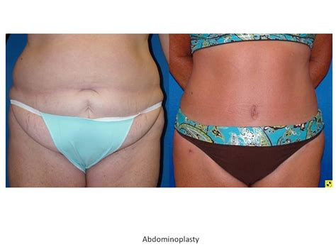 wilmington breast enhancement picture 5