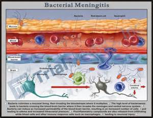 bacterial meningjitis picture 3