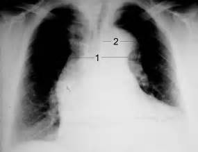 Sensitivity and specificity of chest xray in diagnosing picture 6
