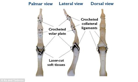 finger joint replacements picture 2