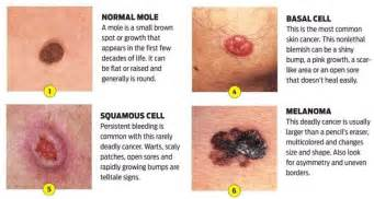 different types of skin cancer picture 2