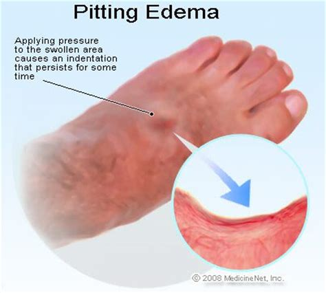 how to reduce swelling after radioiodine treatment picture 5
