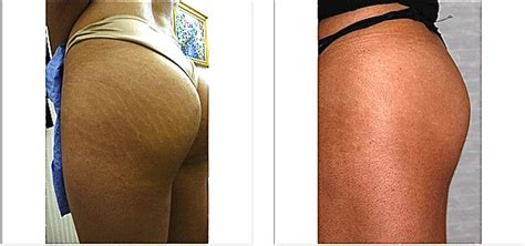 what makes a stretch mark leak picture 6