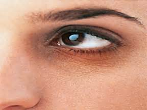skin conditions around eyes picture 2